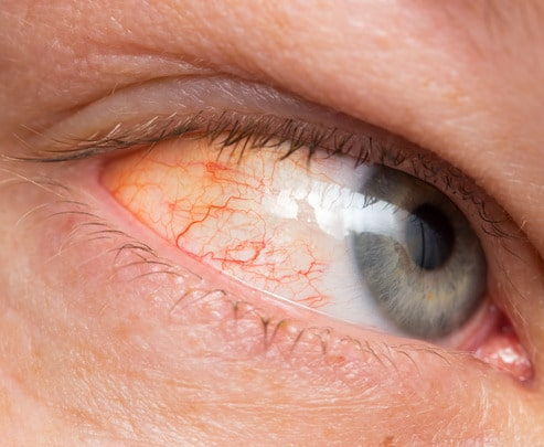Chronic conjunctivitis eye