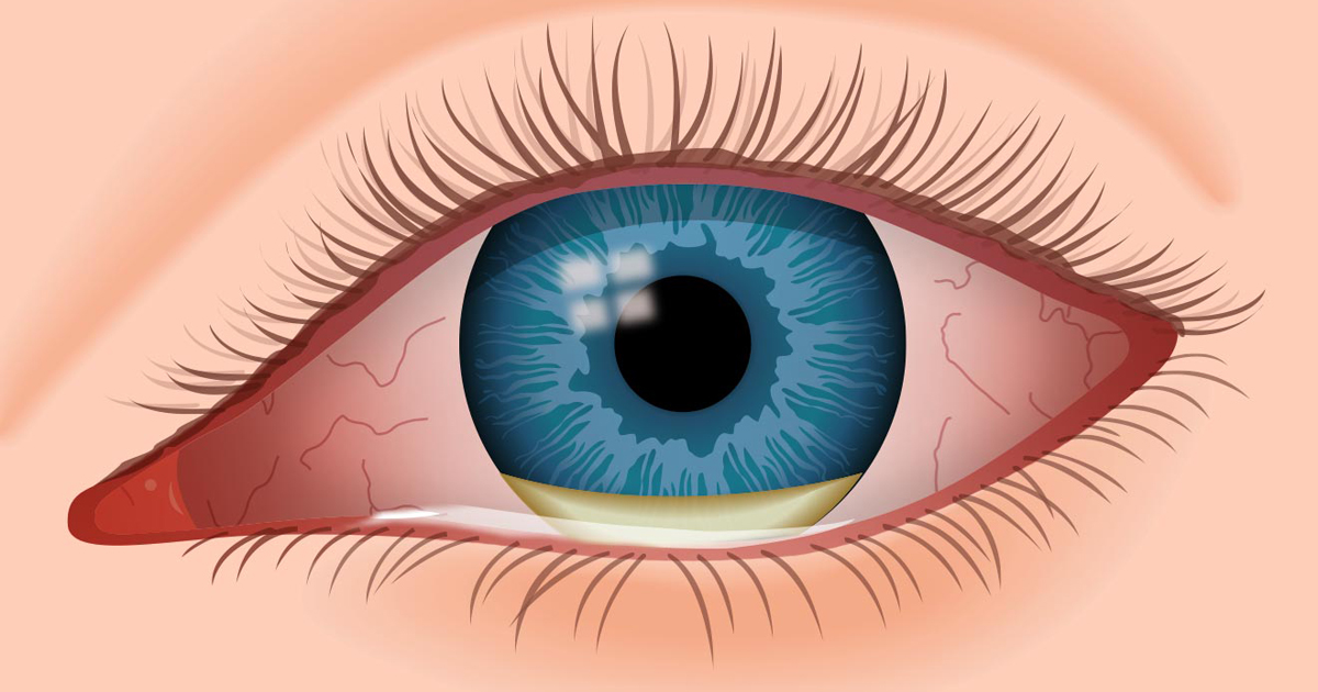 How to Tell if You Have an Eye Infection | Lockport Family ...